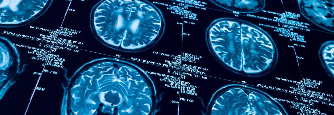 Krankheitsbilder MRT